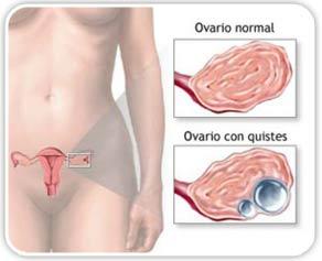 Ovarios poliquísticos