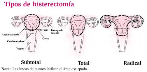 Al extirpar el útero a una mujer conviene conservar los ovarios