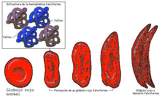 Enfermedad de la hemoglobina SS (Hb SS) archivos - Cuida tu salud ...