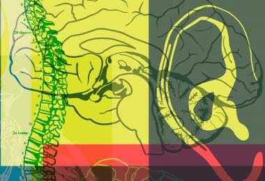 Mielitis Flácida Aguda